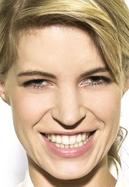 CEREC Vollkeramik Zahnersatz — Zahnimplantat